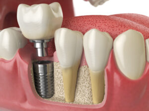 implantologia dentale salerno