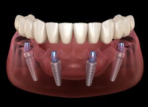 implantologia dentista Salerno