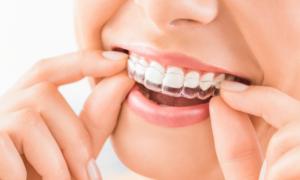 Ortodonzia invisibile salerno