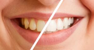 Sbiancamento denti Salerno